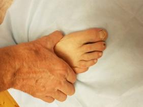 Ревматоидный артрит-стопа